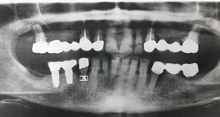 Устранение подвижности зубов