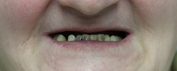 Адентия верхней и нижней челюсти