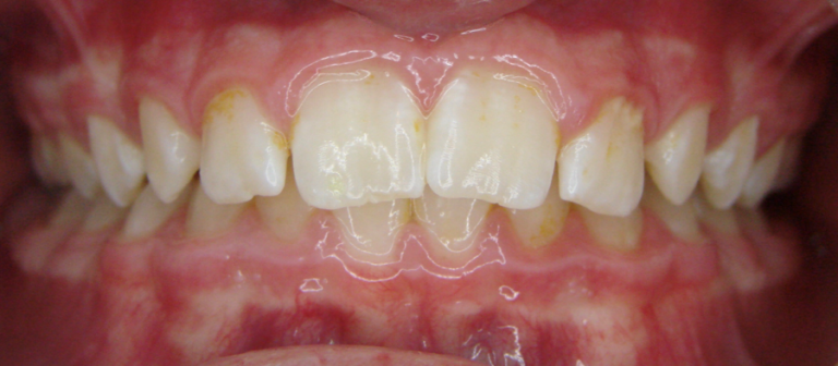 Протрузия резцов верхней челюсти