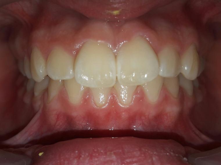 Лечение на элайнерах 3D SMILE