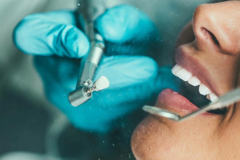 Air Flow — чистка зубов ультразвуком